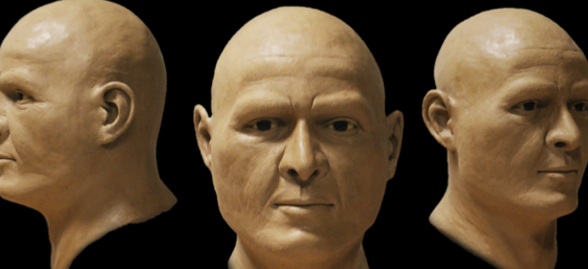 Facial reconstruction germany, Gesichtsrekonstruktion